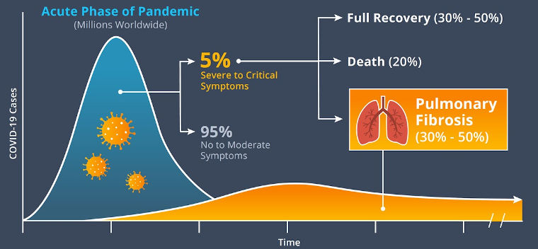 Acute phase of pandemic