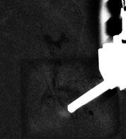 Aiguille de biopsie guidée par angio-mammographie
