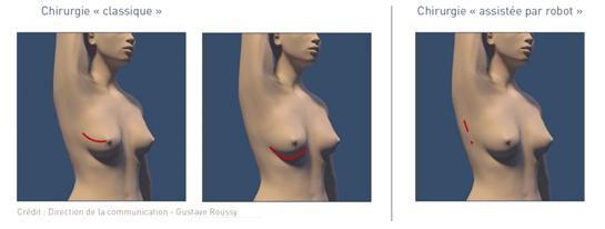 Chirurgie sein robot-assistée