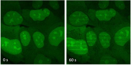 Radiothérapie réparation ADN protéine XLF