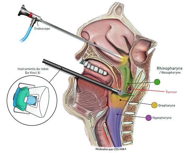 Chirurgie ORL assistée par robot