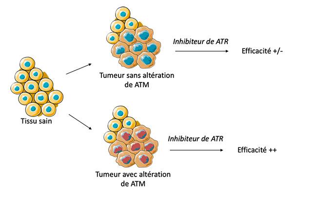 Cibler ATR dans les tumeurs
