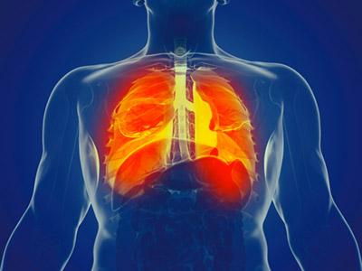 fibrose pulmonaire