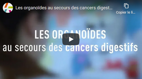 Les organoïdes au secours des cancers digestifs