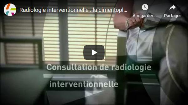 Radiologie interventionnelle : la cimentoplastie