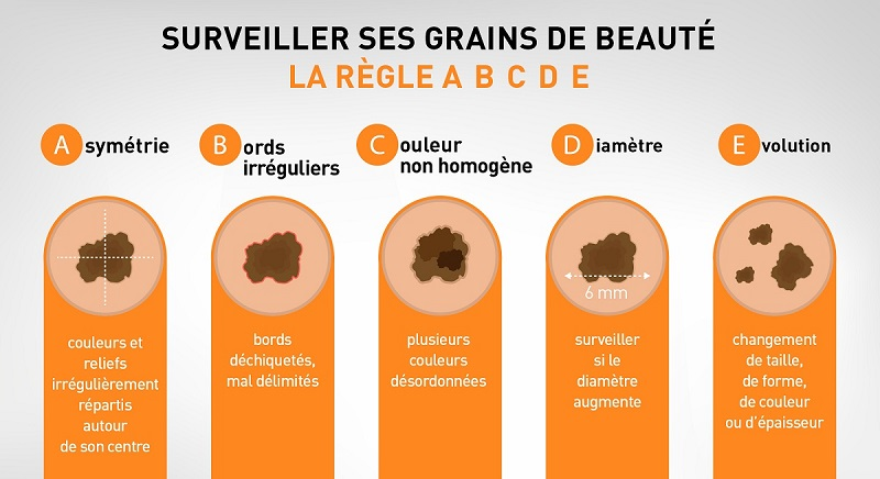 Règle ABCDE pour surveiller ses grains de beauté
